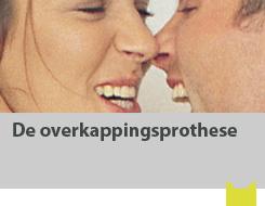 De overkappingsprothese