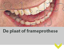 De plaat of frameprothese