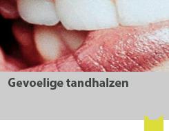 Gevoelige tandhalzen